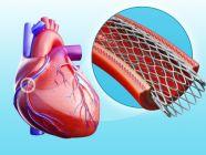 أهم المعلومات: تركيب شبكة في القلب
