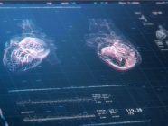 الرنين المغناطيسي للقلب (MRI): التحضير، النتائج وأهم المعلومات