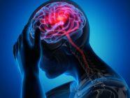 السكتة الدماغية: الأعراض، الأسباب والعلاج