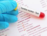تحليل إنزيمات القلب: الشروط والقيم الطبيعية والمرتفعة