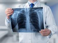 تشخيص تضخم عضلة القلب وأهم الفحوصات