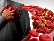 تشخيص جلطات القلب: العلامات، تحاليل الدم، تخطيط القلب، وأكثر