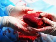 كل ما يجب معرفته عن عملية زراعة القلب
