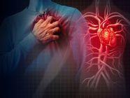 ما هي مسببات الذبحة الصدرية؟