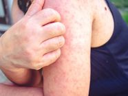 مرض كاواساكي: الأعراض، الأسباب والعلاج