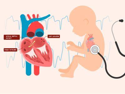 أسباب ظهور ثقب القلب