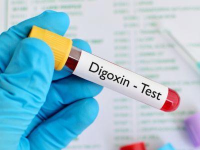 اختبار مستوى الديجوكسين: التحضير، النتائج وأهم المعلومات