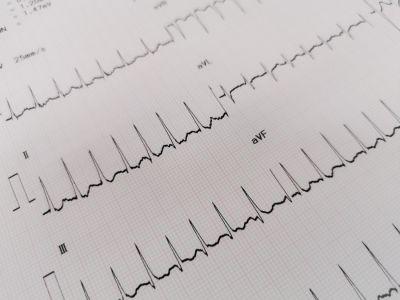 تسرع القلب فوق البطيني: الأعراض، الأسباب، الفحوصات والعلاج