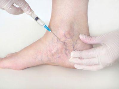 ضعف التروية الدموية في الساقين: الأعراض، الأسباب والعلاج