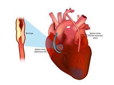 عملية تغيير صمام القلب: الدواعي، التحضيرات وأهم النصائح
