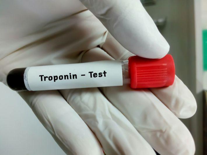 تحليل التروبونين (Troponin) للقلب