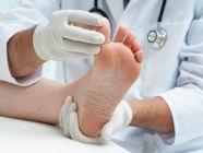 أمراض القدم الجلدية وأعراضها