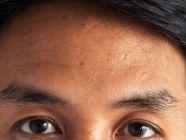 أهم المعلومات: كلف الوجه عند الرجال