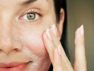 تصبغات البشرة: علاجات طبيعية وطبية