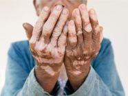 سبب البهاق عند كبار السن