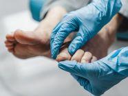 طرق الوقاية من مرض سعفة القدم