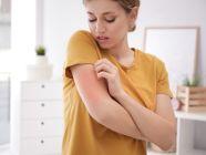 7 أنواع للإكزيما، أعراضها ومواقع ظهورها