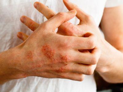 أسباب ظهور إكزيما اليدين