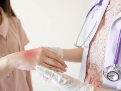 التهاب الجلد البكتيري: الأنواع, الأعراض والعلاج