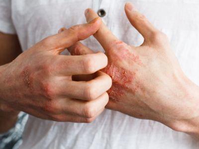 الحساسية الجلدية: الأعراض، الأسباب والعلاج