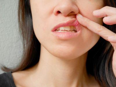 الفرق بين الهربس وتقرحات الفم