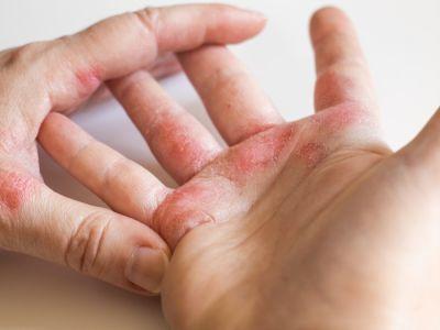الفروقات الأساسية بين الإكزيما وسرطان الجلد