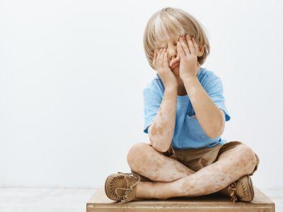 تشخيص البهاق عند الأطفال