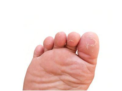 سعفة القدم: الأعراض،الأسباب والعلاج