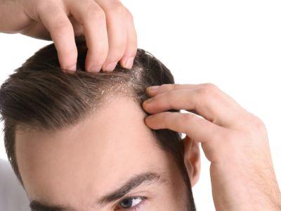 كيفية علاج الصدفية على فروة الرأس