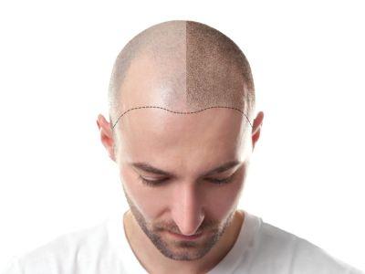 ما يمكن توقعه بعد زراعة الشعر