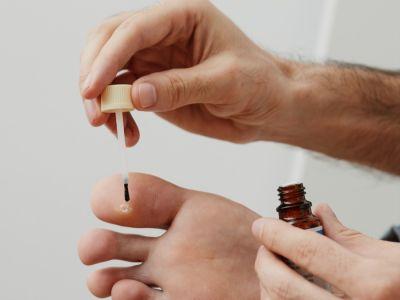 مسمار القدم: الأعراض، الأسباب والعلاج