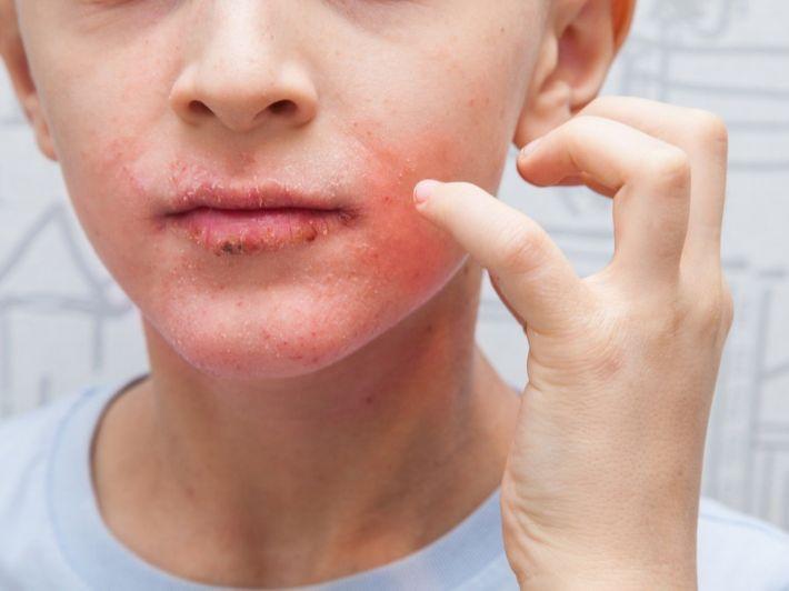 إكزيما الوجه: الأعراض، الأسباب والعلاج