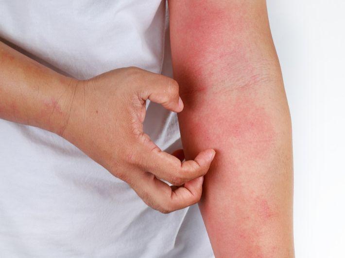 الإكزيما: الأعراض، الأسباب والعلاج
