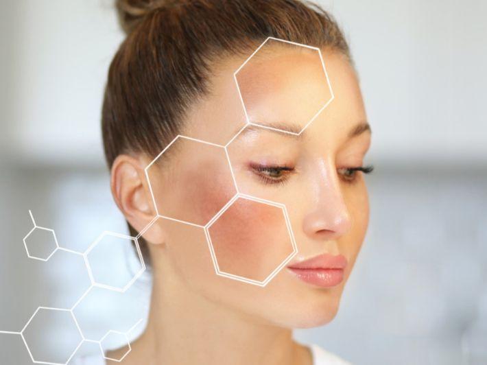 التصبغات الجلدية: الأعراض، الأسباب والعلاح