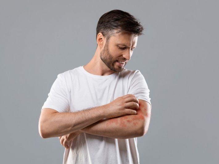 التهاب الجلد: الأعراض، الأسباب والعلاج