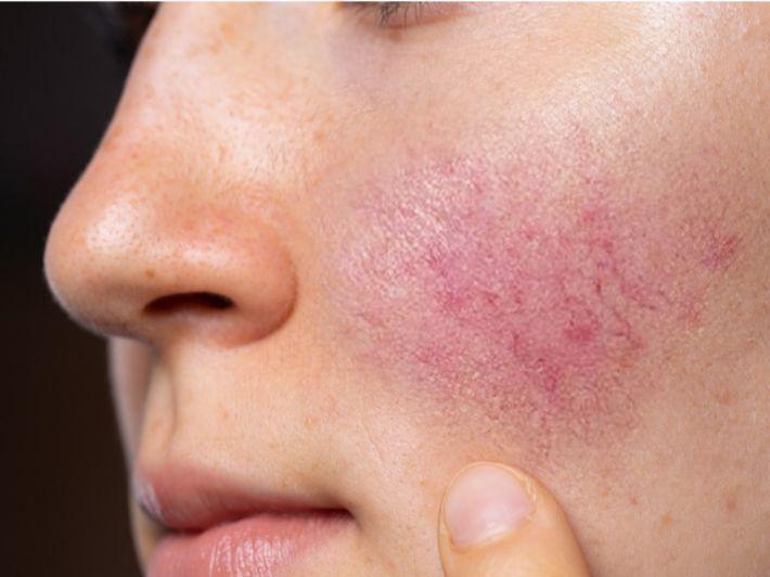 بالصور: أسباب الطفح الجلدي وأعراض كل منها