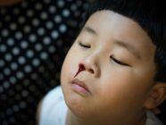كيفية وقف نزيف الأنف عند الأطفال