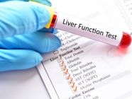 ارتفاع إنزيمات الكبد: على ماذا يدل وما هو العلاج؟