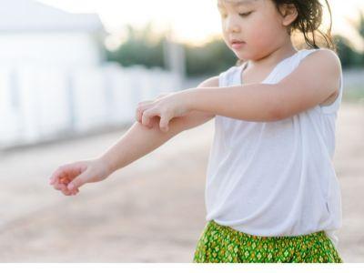 أهم المعلومات: حساسية الطعام عند الأطفال