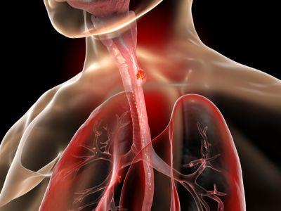 التهاب المريء: الأعراض، الأسباب والعلاج