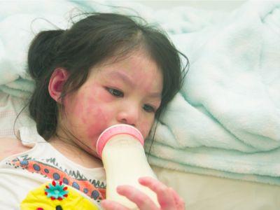 الفرق بين حساسية الحليب وعدم تحمل اللاكتوز