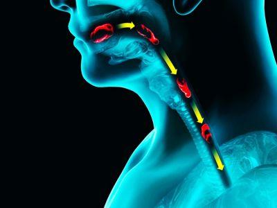 تشنج المريء: الأعراض، الأسباب والعلاج