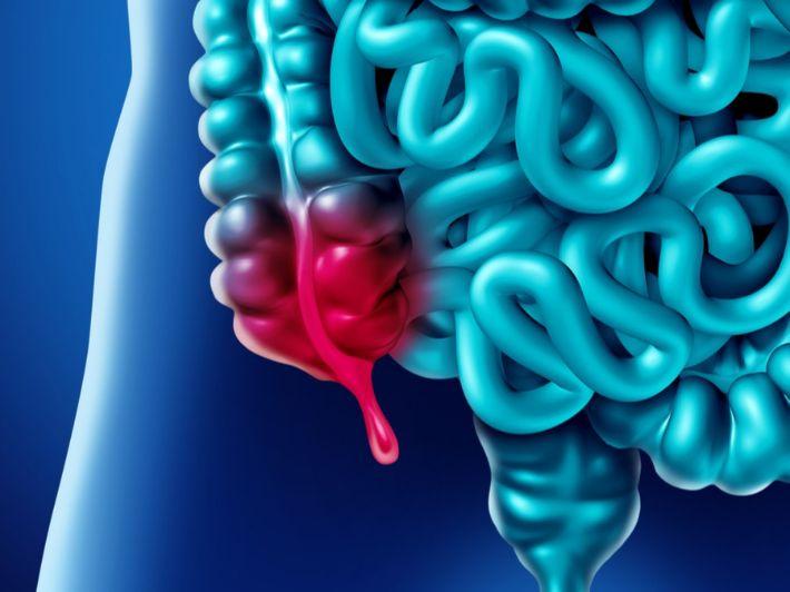 التهاب الزائدة الدودية: الأعراض، الأسباب والعلاج
