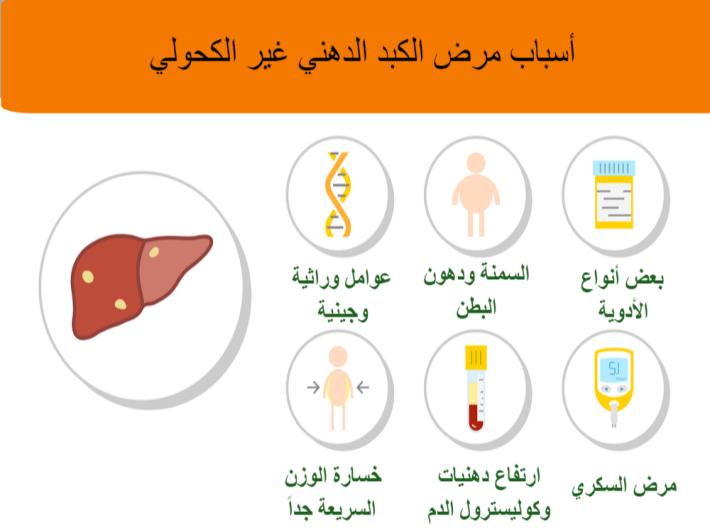 مرض الكبد الدهني غير الكحولي: الأعراض، الأسباب والعلاج
