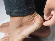 11 وصفة طبيعية لتشقق القدمين وأهم النصائح