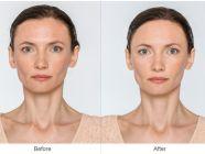 نحافة الوجه: الأسباب وطرق ونصائح للتسمين