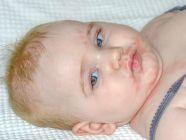 ظهور حبوب حول فم الطفل: لماذا وما العمل؟