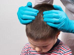 بالصور: أمراض فروة الرأس عند الأطفال