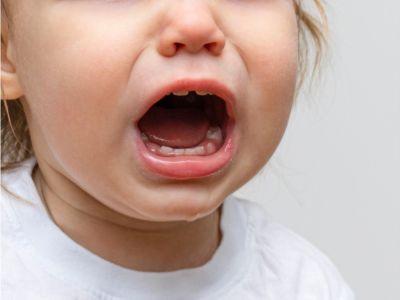 أعراض ظهور الطواحين عند الأطفال