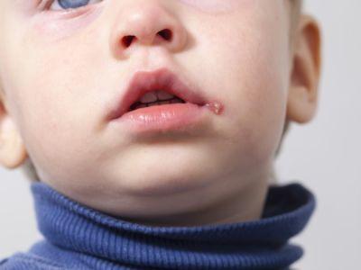 الهربس عند الأطفال: الأعراض، الأسباب، الوقاية، والعلاج